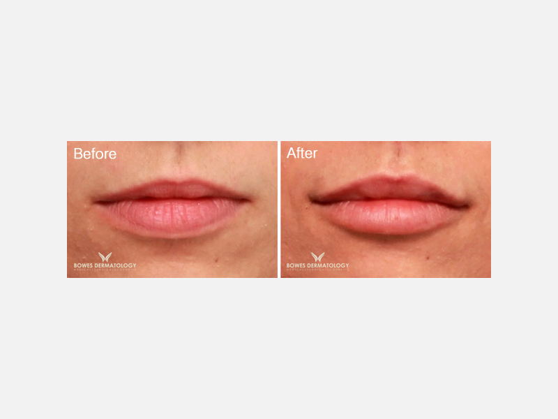 Lip Augmentation Fillers - Juvéderm® Ultra XC