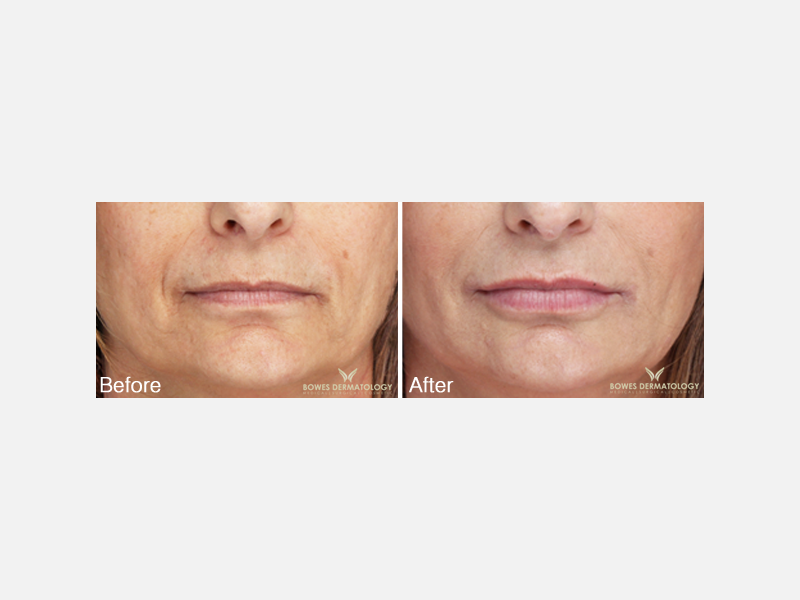 Lifting of the Corners of the Mouth with Juvéderm® Ultra XC