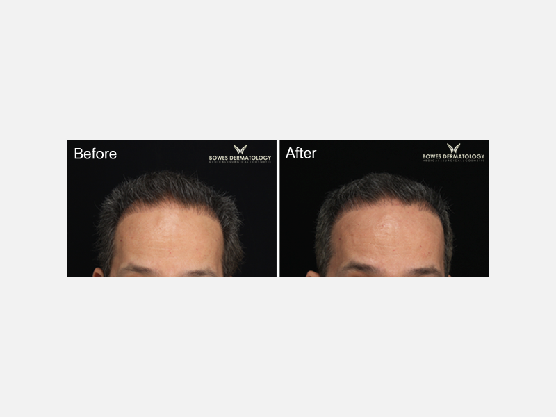Platelet Rich Plasma - Hair Loss