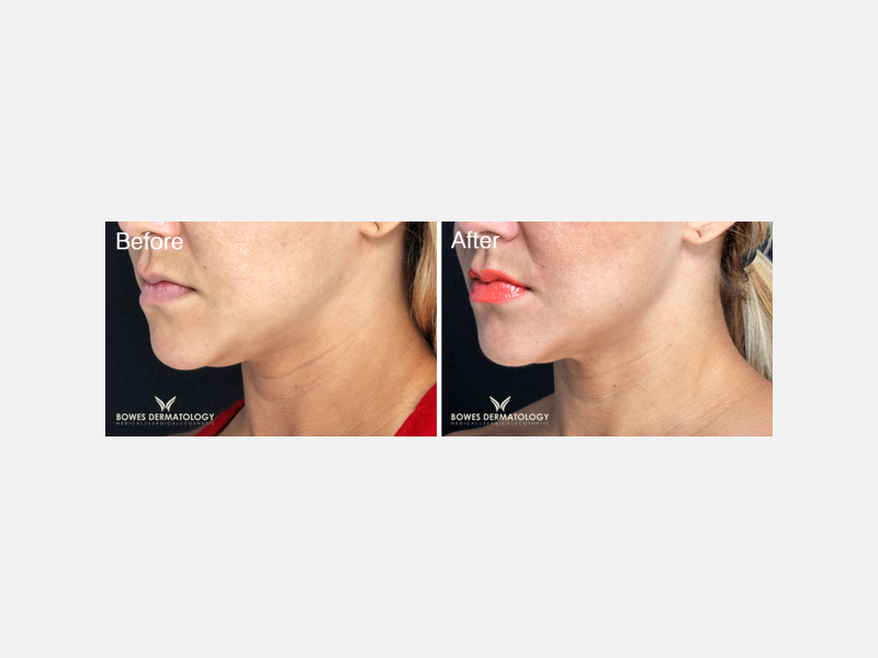 Sculpting & Tightening of the Face & Neck - VelaShape® III Album ID