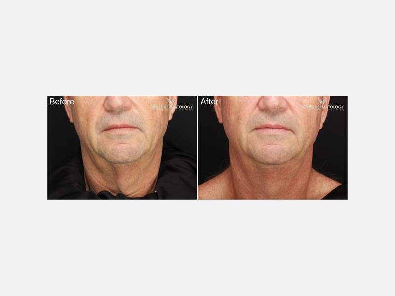 Sculpting & Tightening of the Face & Neck - Profound™: The Evolastin Procedure Album ID