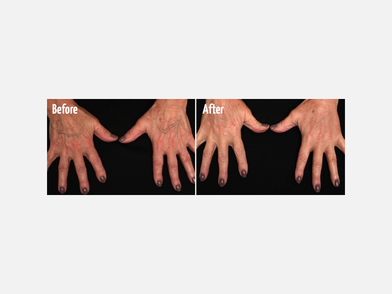 Hand Rejuvenation with Radiesse® Volumization & Fraxel® Laser Resurfacing