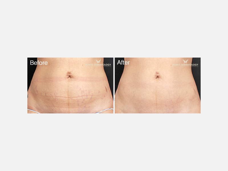 Lasers & Light Sources - Lasers for Stretch Marks