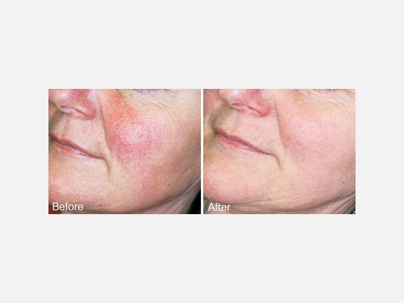 Lasers & Light Sources - IPL PhotoFacial Album ID