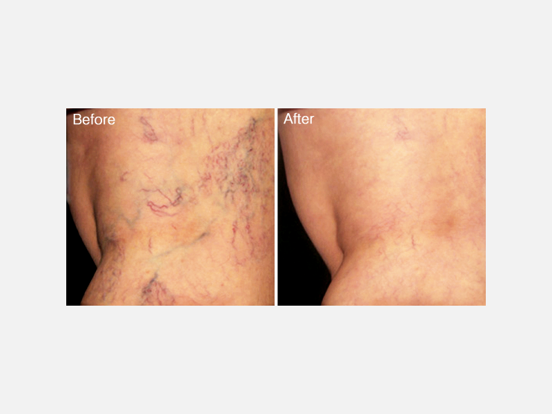 Veins Treatments Album ID