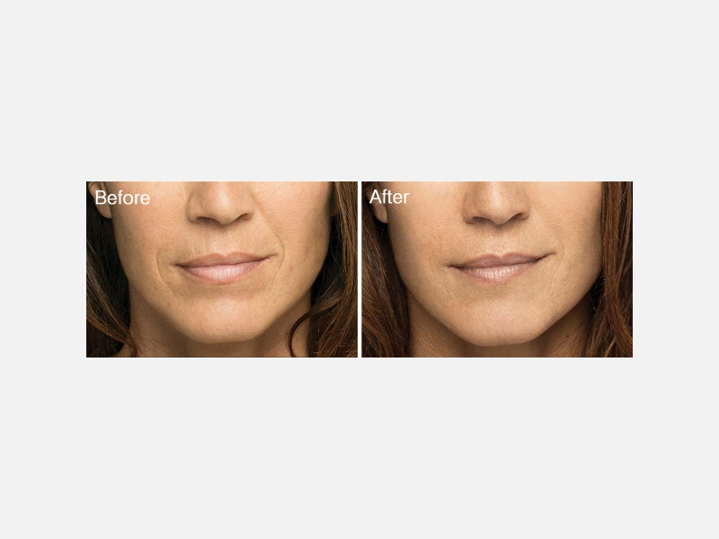 Lip Lines and Smile Lines Treated with Belotero®