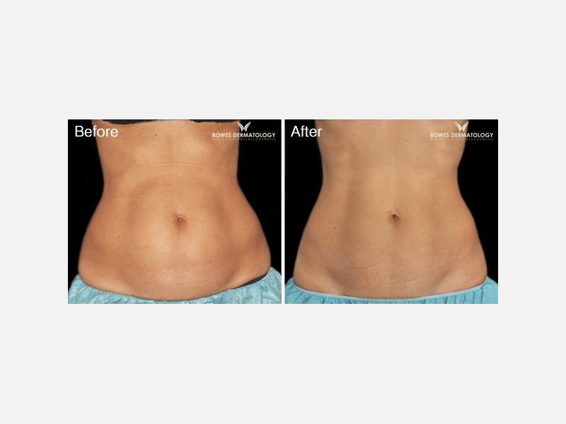 Sculpting & Tightening of the Body - CoolSculpting®