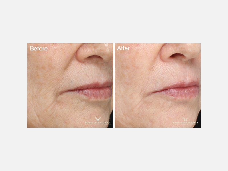 Fine Lines Treated with Belotero®