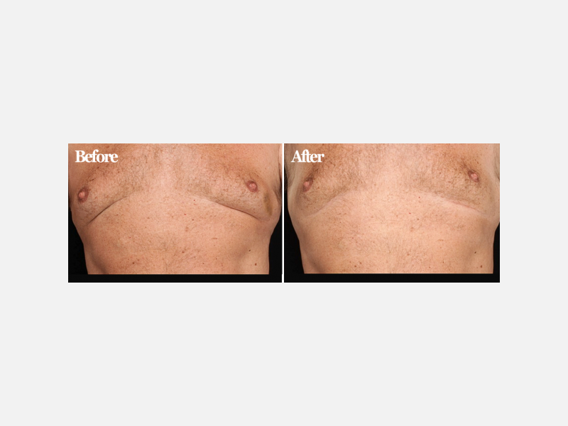 Chest Treated with CoolSculpting®