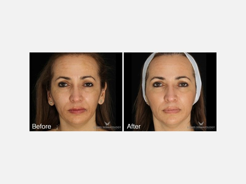 Lasers & Light Sources - Lasers for Dark Spots