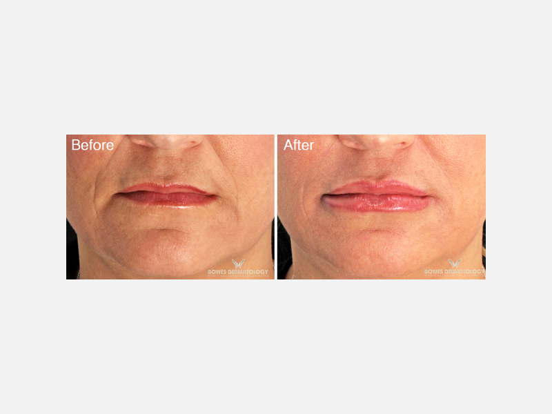 Lip Augmentation Fillers - Restylane® Silk