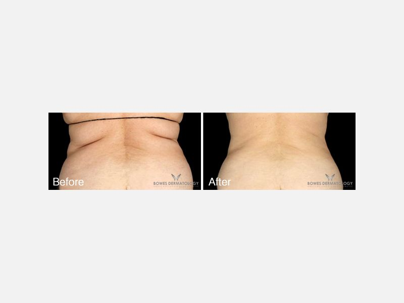 Back Treated with CoolSculpting®