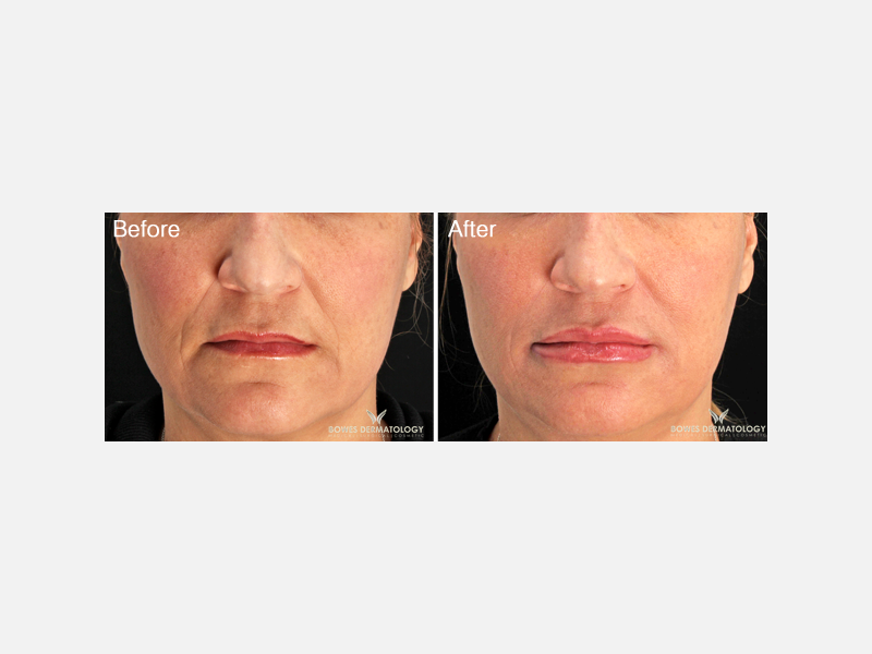 Superficial Fillers - Restylane® Silk