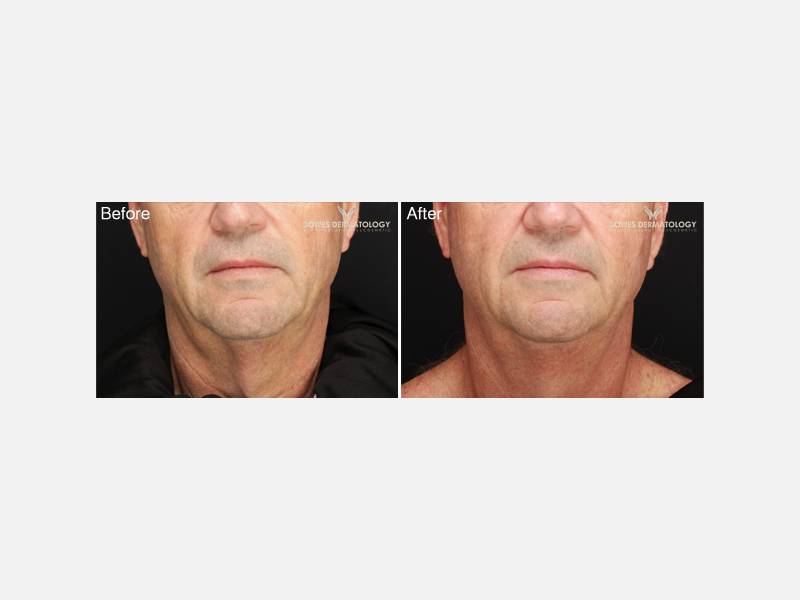 Neck Rejuvenation Album ID