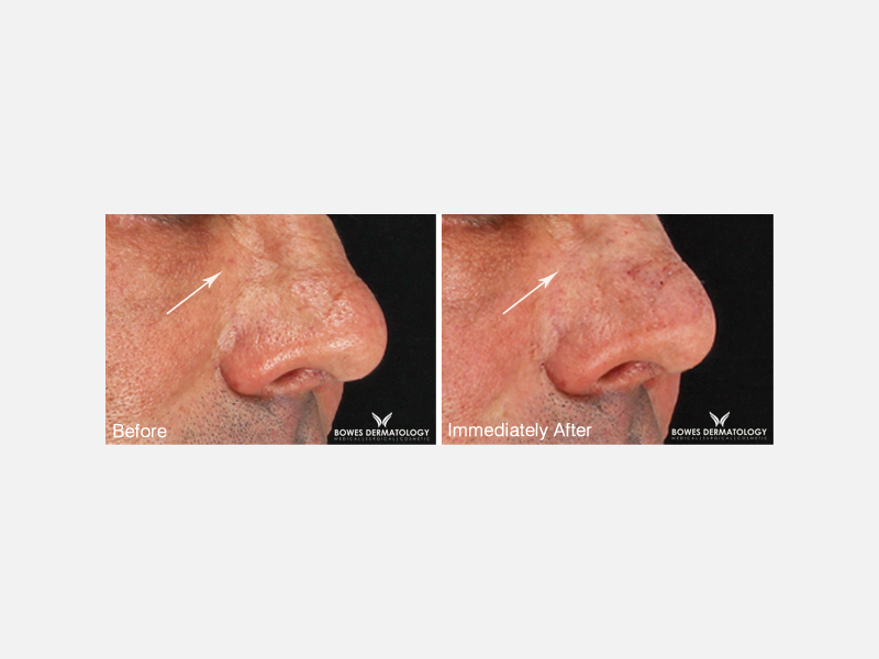 Wrinkles in Nose Area Treated with Belotero®