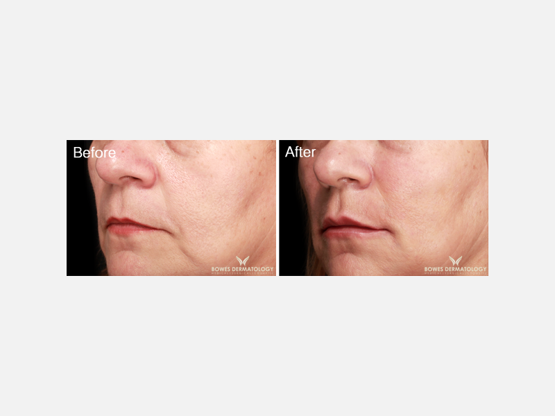 Radiesse® for Lifting of the Cheeks and Softening of Nasolabial Fold