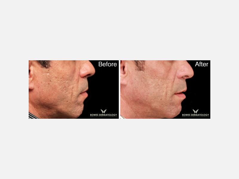 Fractional Laser for Acne Scars