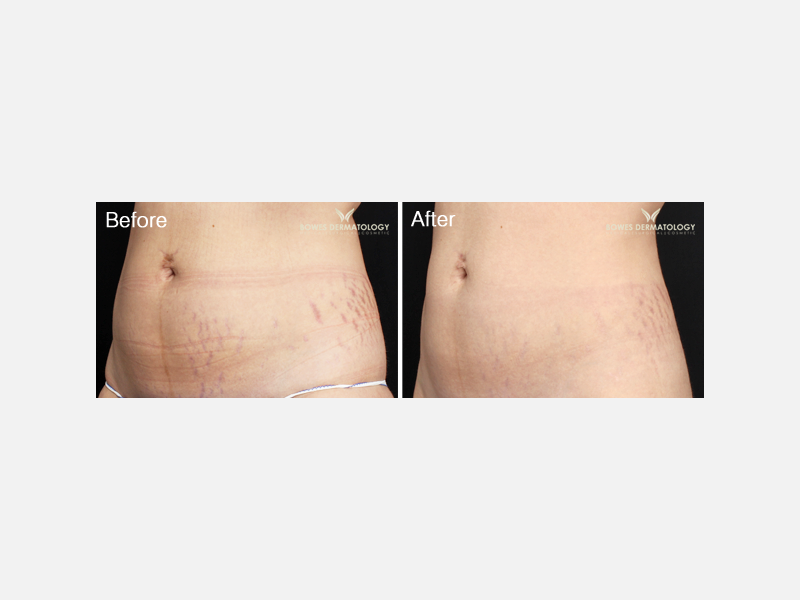 Stretch Marks Treatment with Icon® XD