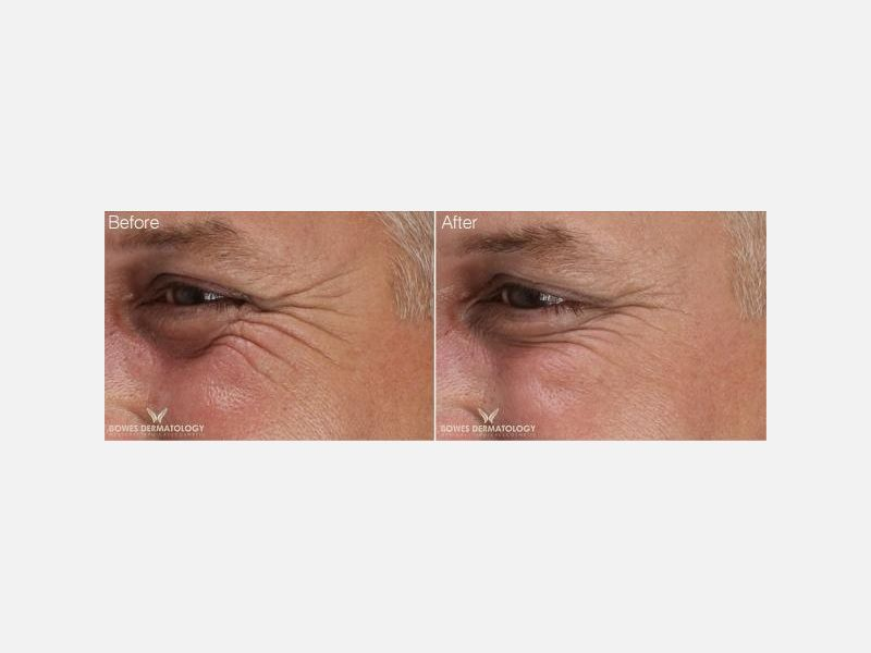 Expression Lines Treated with Xeomin®