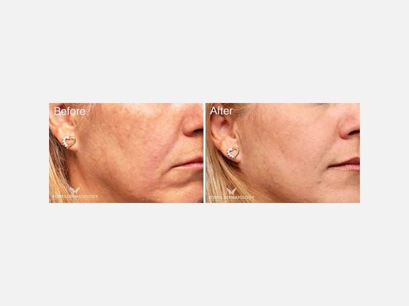 Restylane® for Correction of Nasolabial Folds and Corners of the Mouth