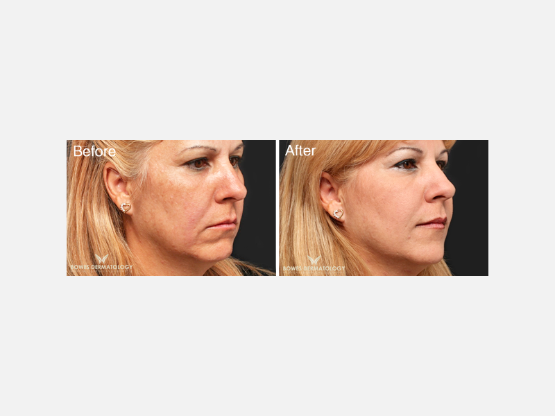 Mid-Level Fillers - Restylane®