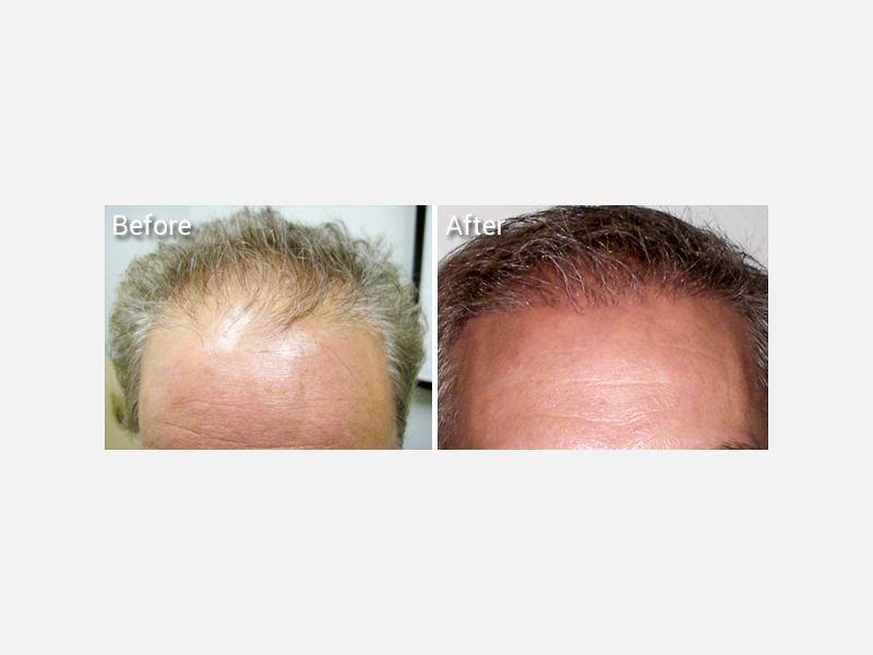 NeoGraft, no linear scar hair transplantation procedure.