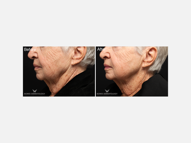 ePrime™ Provides Neck Tightening & Facial Wrinkling