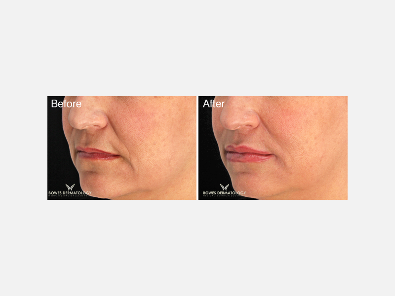 Correction of Fine Lines & Lip Augmentation with Restylane® Silk