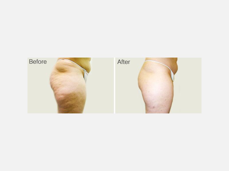 Cellulite Treatment with VelaShape® III