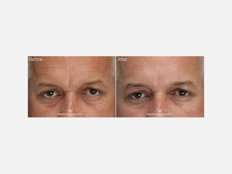 Forehead & Crows Feet Wrinkles Treated with Belotero® (Filler) & Xeomin® (Botulinum)