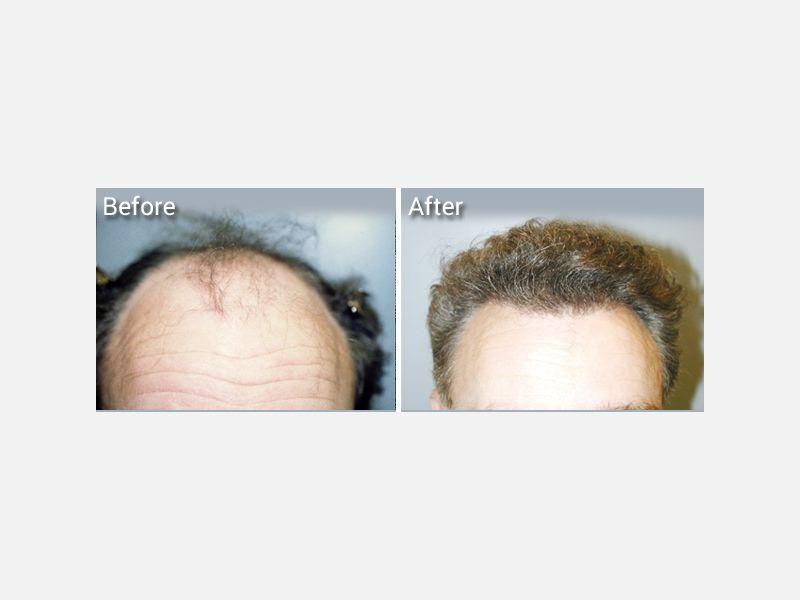 Shorter recovery time hair transplantation near me.