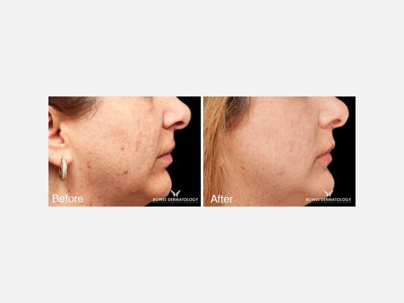 Lignin Peroxidase Bleaching (Elure™)