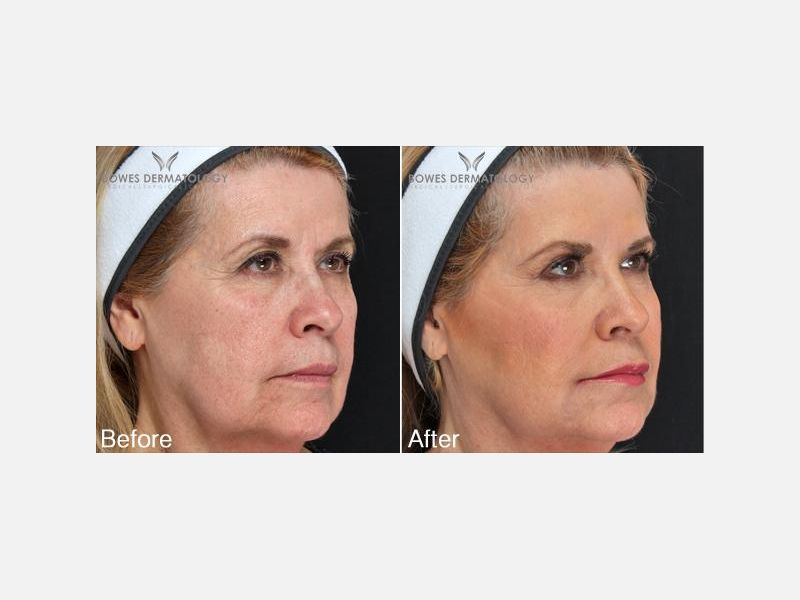 Liquid Facelift with Voluma® & Juvederm®