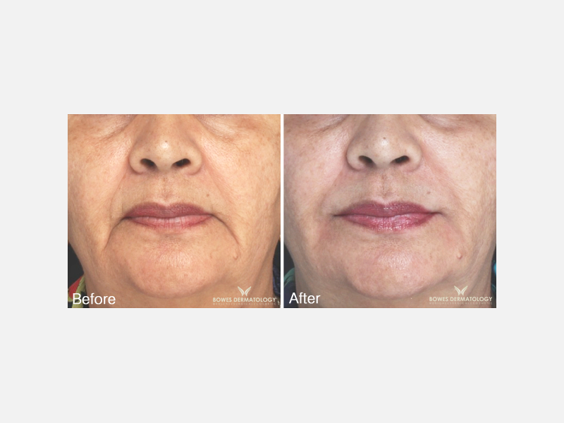Juvéderm® Ultra Plus for Correction of Nasolabial Folds and Corners of the Mouth