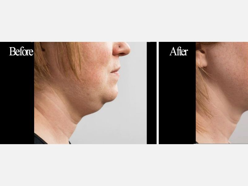 "Submental Fat (""Double Chin"") Treated with CoolSculpting®"