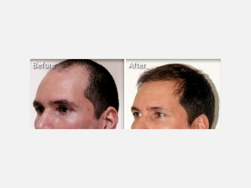 More natural looking hair with Neograft hair transplantation procedure near me.