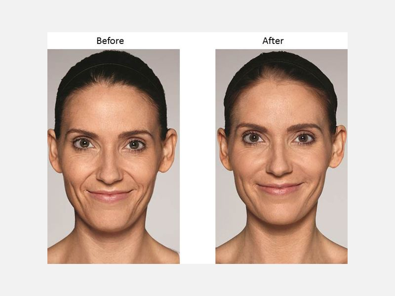 Mid-Level Fillers - Restylane® Refyne