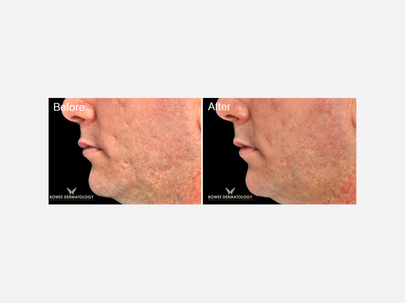 Subcision & Fillers for Acne Scars