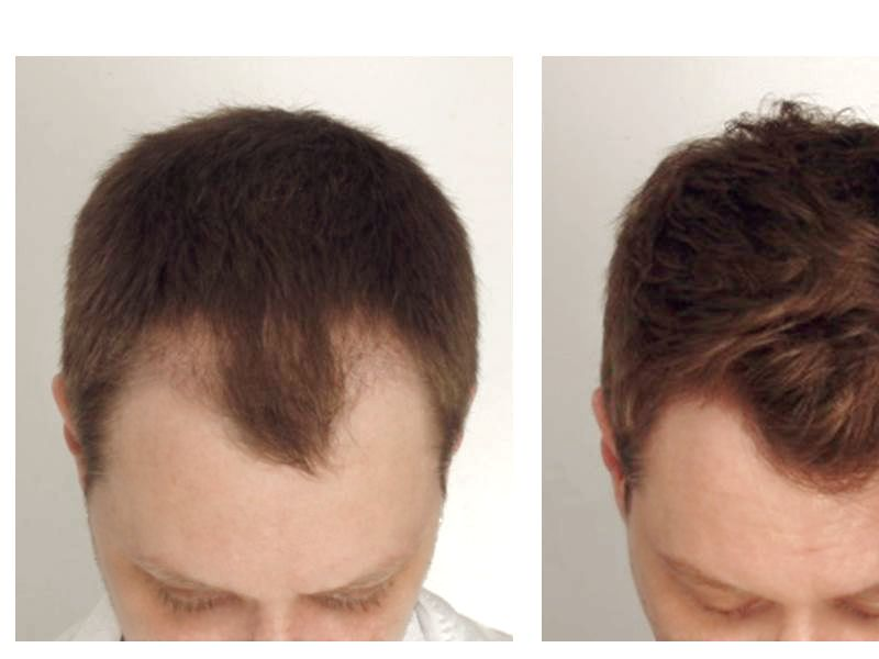 Hair Transplant with NeoGraft® Picture #4