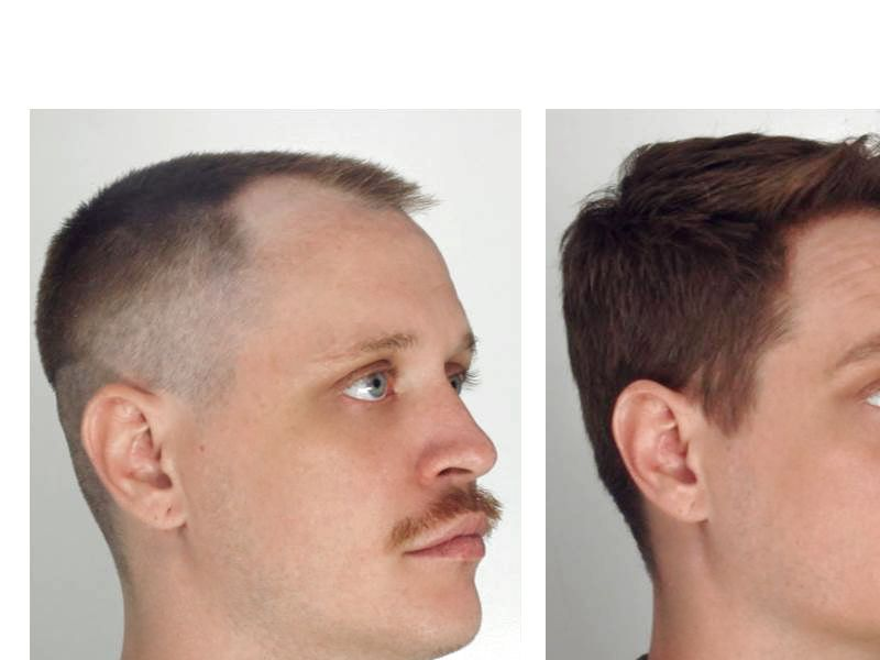 Hair Transplant with NeoGraft® Picture #1