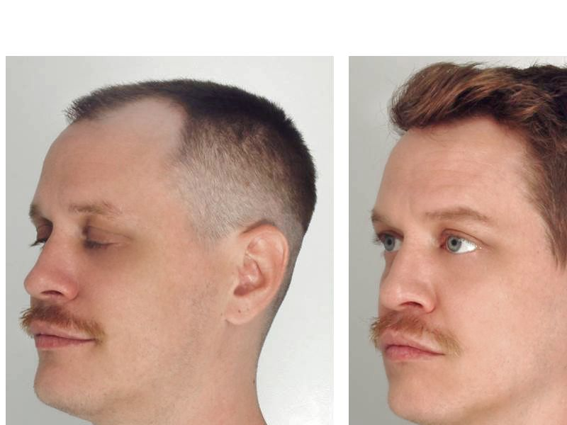 Hair Transplant with NeoGraft® Picture #2