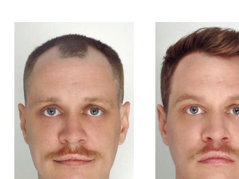 Hair Transplant with NeoGraft® Picture #3