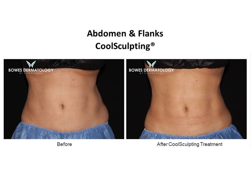 Abdomen and Flanks Clinical Results after treatment with CoolSculpting in Miami - Image-1