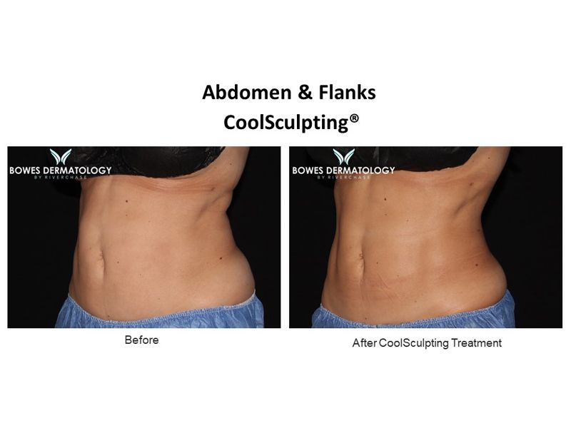 Abdomen and Flanks Clinical Results after treatment with CoolSculpting in Miami - Image-2