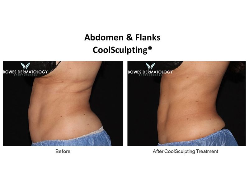 Abdomen and Flanks Clinical Results after treatment with CoolSculpting in Miami - Image-3