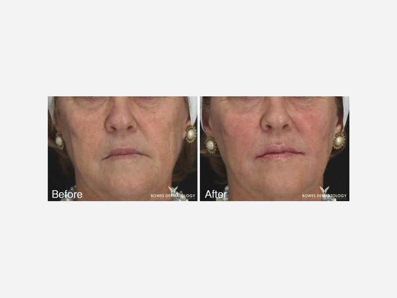 Use of the fillers Juvederm Ultra and Voluma