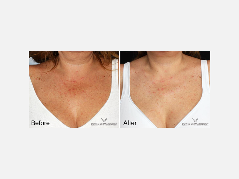Treatment with the Intense Pulse Light (IPL) and Platelet-Rich Plasma (PRP)