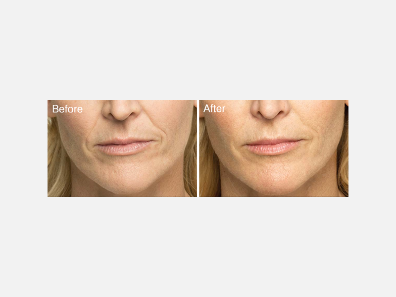 Nasolabial Lines and Folds, Vertical Lip Lines, and Smile Lines Treated with Belotero®
