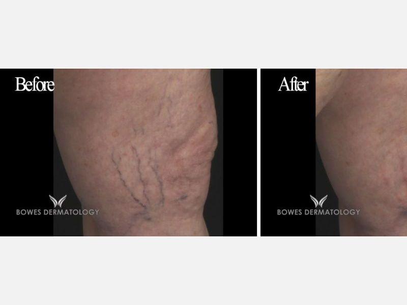 Spider Veins Treatment with GentleMax Pro® Laser