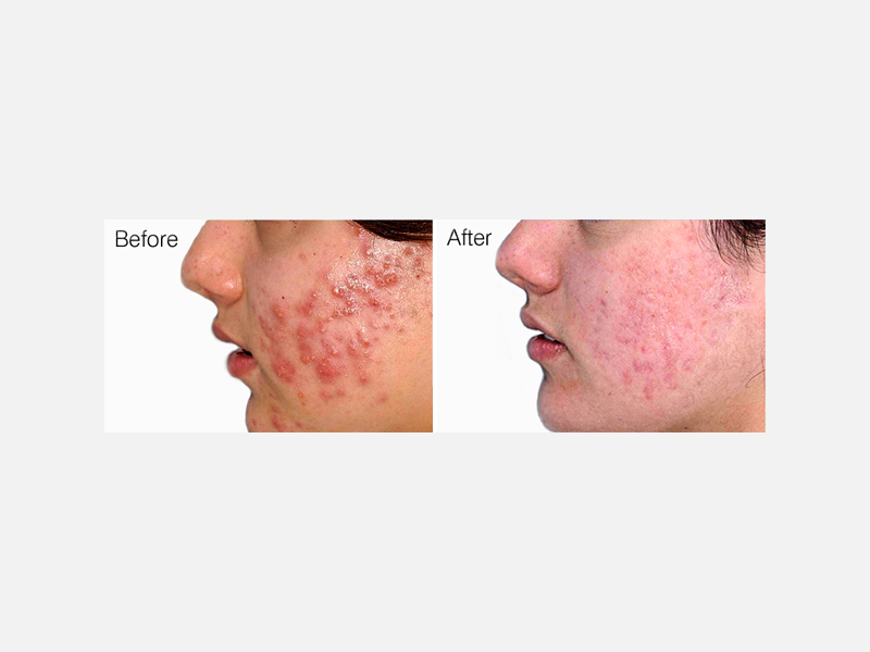 Lasers & Light Sources - Photodynamic Therapy (PDT)  for Acne
